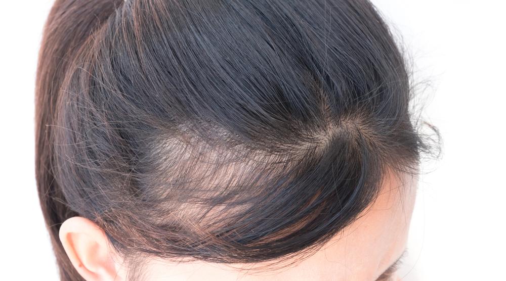 白髪染め かぶれ 肌荒れ 症状 0