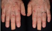 ジアミンなどの刺激の強い成分が含まれている染料による手荒れ