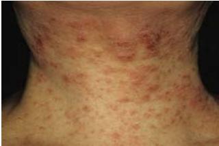 首や耳周りなど広い範囲にできる湿疹